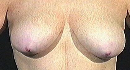 Breast Lift Before & After Patient #1631