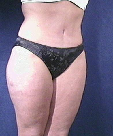 Tummy Tuck Before & After Patient #1804