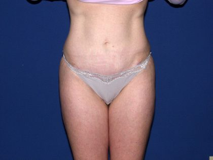Tummy Tuck Before & After Patient #1905