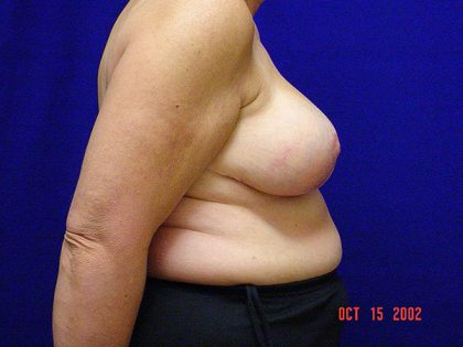 Breast Reduction Before & After Patient #3517