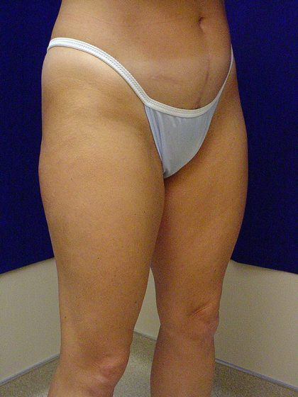 Liposuction Before & After Patient #3698