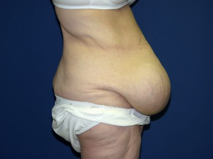 Circumferential Tummy Tuck Before & After Patient #898