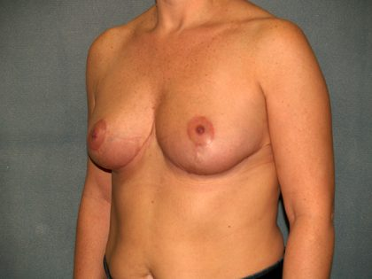 Breast Reduction Before & After Patient #3539
