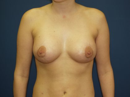 Breast Lift Before & After Patient #1580