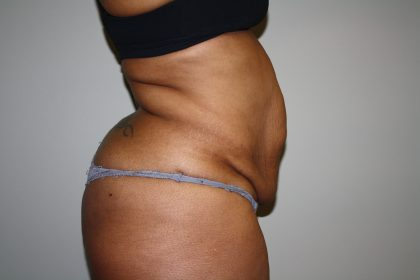 Tummy Tuck Before & After Patient #2344