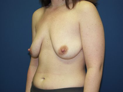 Breast Lift Before & After Patient #1418