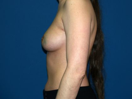 Breast Reconstruction Before & After Patient #2312