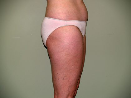 Liposuction Before & After Patient #3600