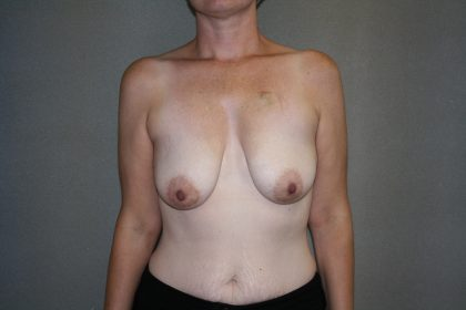Breast Reconstruction Before & After Patient #1718