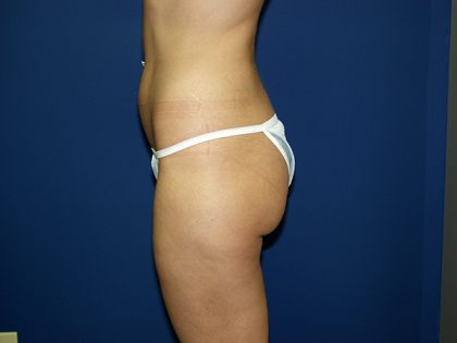 Liposuction Before & After Patient #3638