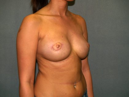 Breast Reconstruction Before & After Patient #1711