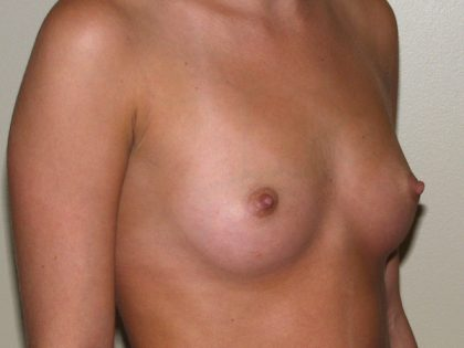 Breast Augmentation Before & After Patient #2489