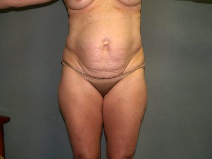 Tummy Tuck Before & After Patient #1815