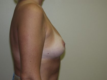 Breast Augmentation Before & After Patient #2948