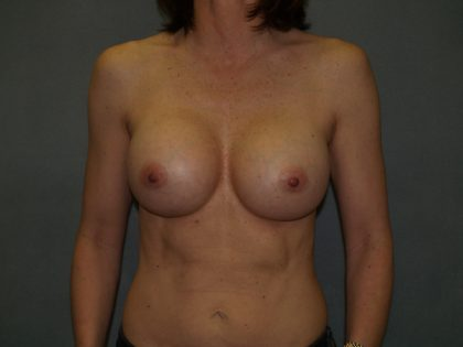 Breast Augmentation Before & After Patient #2573