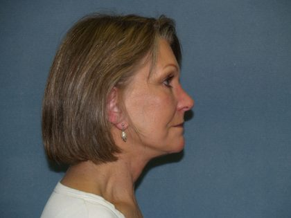 Facelift Before & After Patient #620