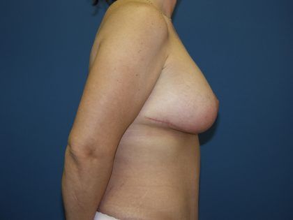 Breast Lift Before & After Patient #1551