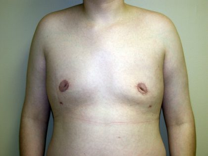 Gynecomastia Before & After Patient #941