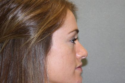 Nose Surgery Before & After Patient #788