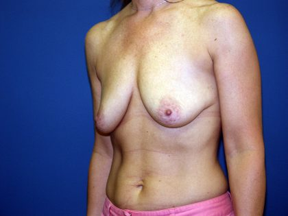 Breast Lift Before & After Patient #1645