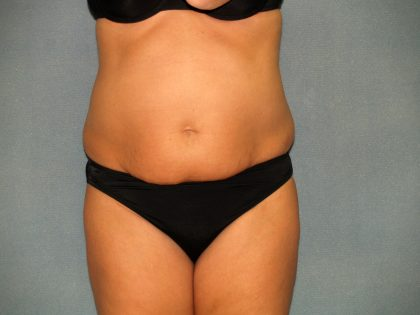 Tummy Tuck Before & After Patient #2074