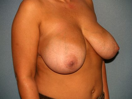 Breast Reduction Before & After Patient #3175