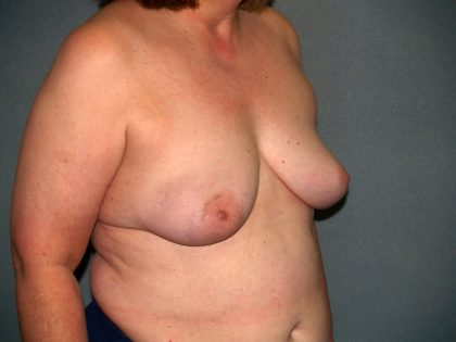 Breast Reconstruction Before & After Patient #1753