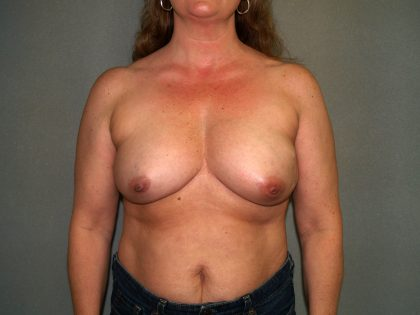 Breast Reconstruction Before & After Patient #2061