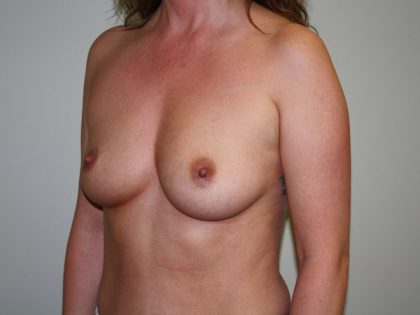 Breast Augmentation Before & After Patient #2454