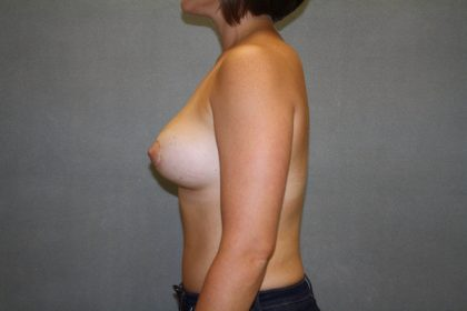 Breast Augmentation Before & After Patient #2496