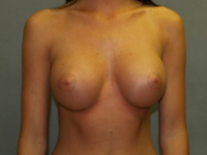 Breast Augmentation Before & After Patient #2468