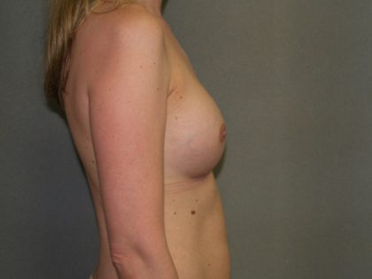 Breast Augmentation Before & After Patient #2531