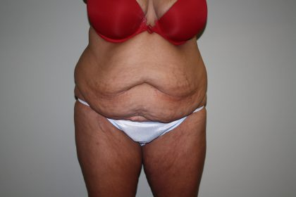 Tummy Tuck Before & After Patient #1832