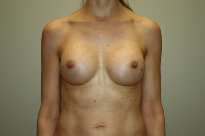 Breast Augmentation Before & After Patient #2598