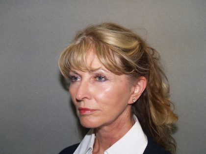 Facelift Before & After Patient #585