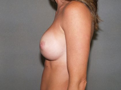 Breast Augmentation Before & After Patient #2801