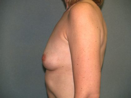 Breast Augmentation Before & After Patient #2871