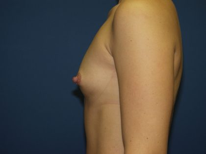 Breast Augmentation Before & After Patient #2941