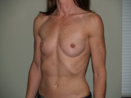 Breast Augmentation Before & After Patient #2990