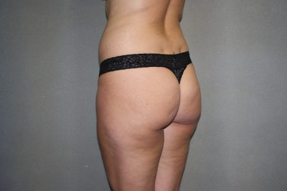 Brazilian Butt Lift Before & After Patient #454