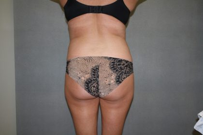 Brazilian Butt Lift Before & After Patient #461