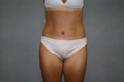 Tummy Tuck Before & After Patient #2194