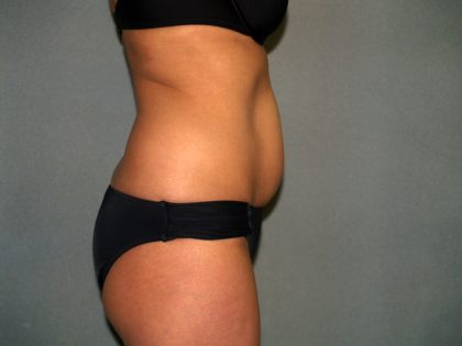 Tummy Tuck Before & After Patient #1875
