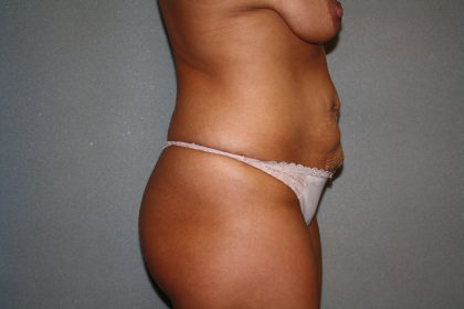 Tummy Tuck Before & After Patient #1883
