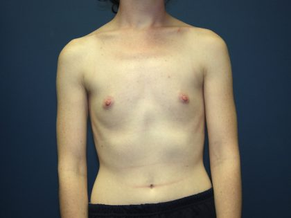 Breast Augmentation Before & After Patient #2566