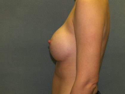 Breast Augmentation Before & After Patient #2913