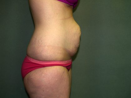Tummy Tuck Before & After Patient #1892