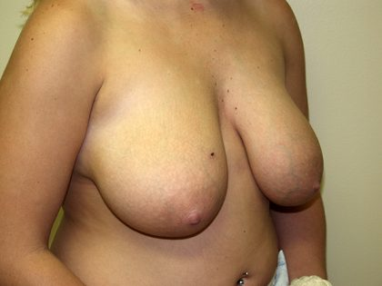 Breast Reduction Before & After Patient #3194