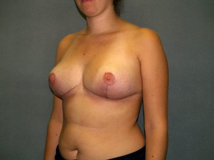 Breast Reduction Before & After Patient #3415