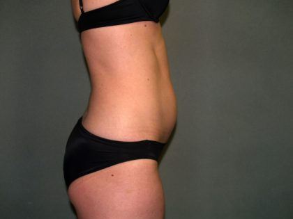 Tummy Tuck Before & After Patient #1861